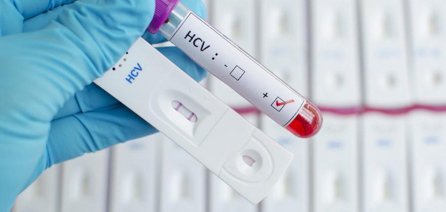 Hepatitis C virus (HCV) testing by using test cassette, the result showed positive (double red line)